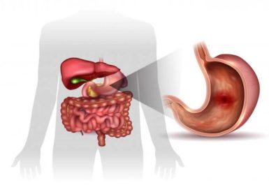 Профилактика язвенной болезни
