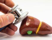 Камни в желчном пузыре: симптомы, диета и лечение. Почему образуются желчные камни?