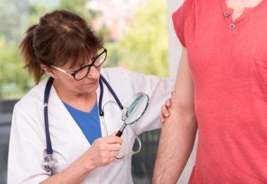 Лишай у человека: симптомы и лечение