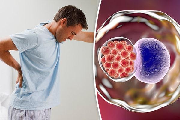 Хламидиоз у мужчин: лечение, симптомы