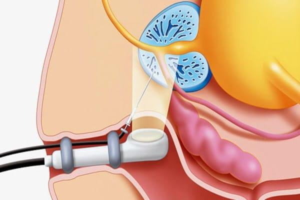 Важность биопсии для больных простатитом, как проходит процедура, и какие могут быть осложнения