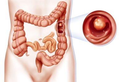 Полипы желудка: виды, причины, симптомы, лечение полипов