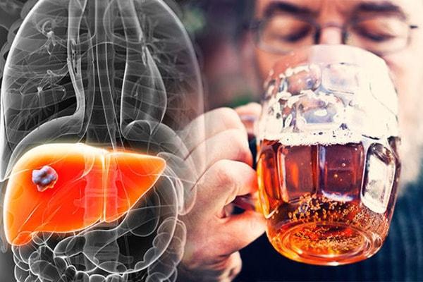 Что такое алкогольный гепатит и как его лечить?