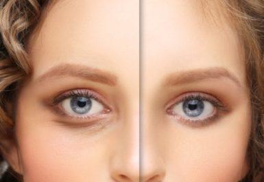 Влияние носослезной борозды на внешность