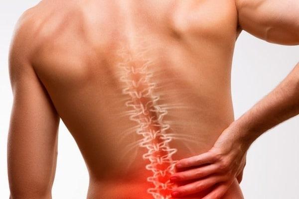 Болезнь Бехтерева или анкилозирующий спондилит: способы лечения и прогноз