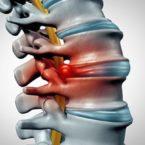 Секвестрированная грыжа позвоночника: симптомы и лечение